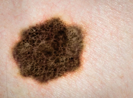Frequent Skin Cancers May Signal Risk of Other Cancers, Too