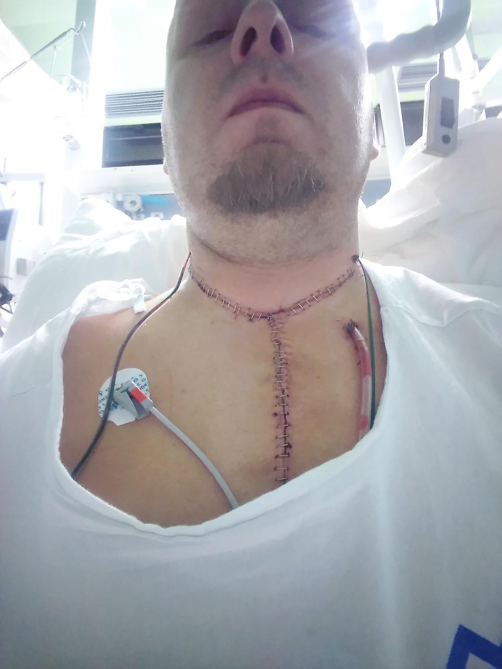 Po operaci