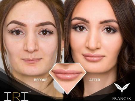 Hyaluron Lips & Face