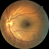fundus photo 1 200x200.png
