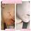 Thumbnail: Purity Clear Skin Cream