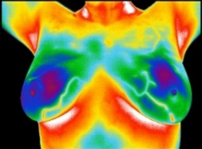 640x480 Breast Image.jpg