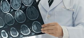 Brain Injury.png