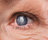 oftalmologo cancun catarata 03.jpg