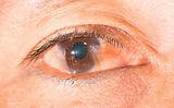 oftalmologo cancun carnosidad en el ojo.