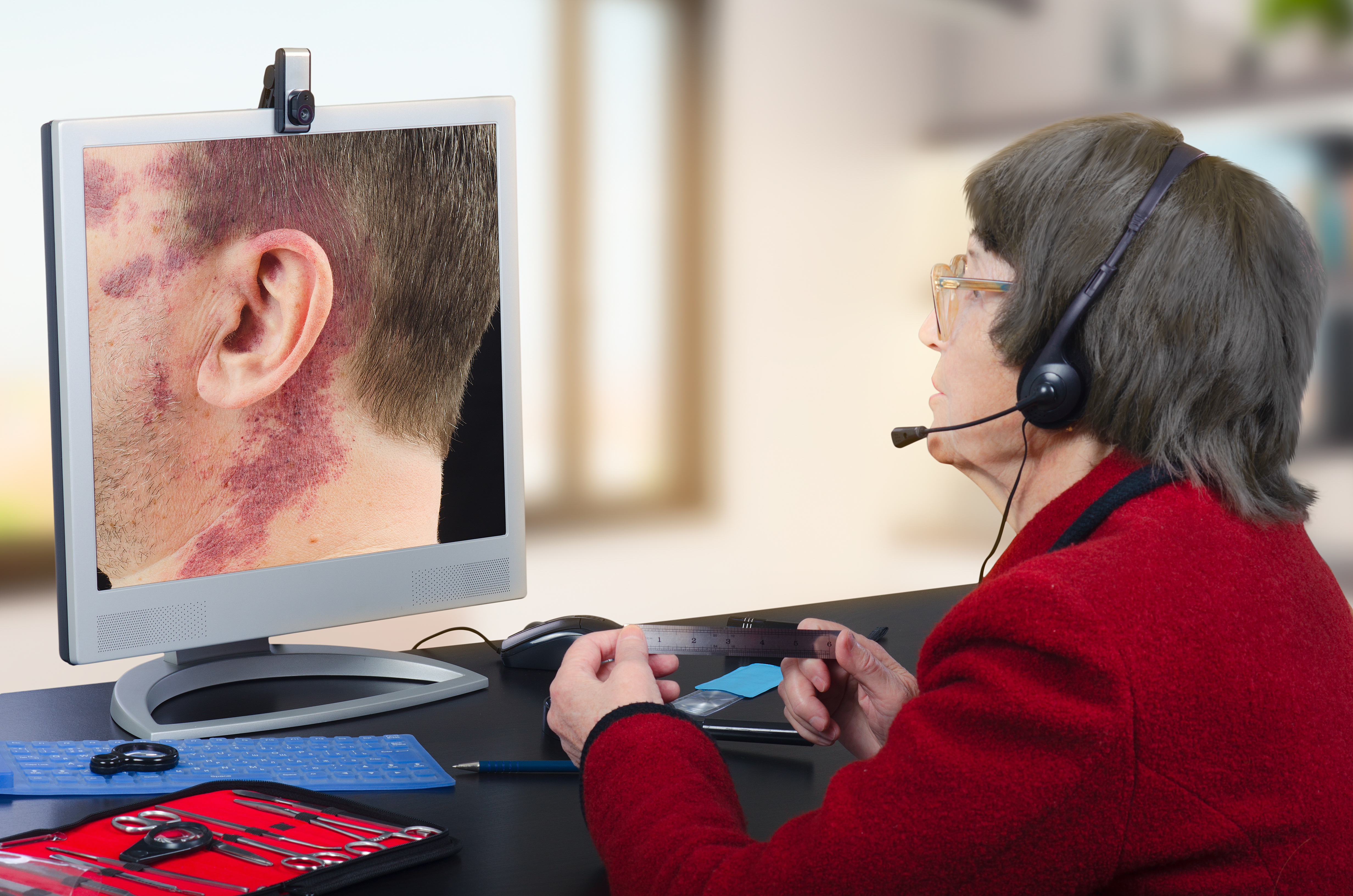 Telemedicine dermatologist in headset observes at birthmark on monitor attentively