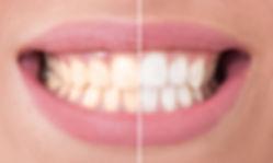TeethWhitening.jpg