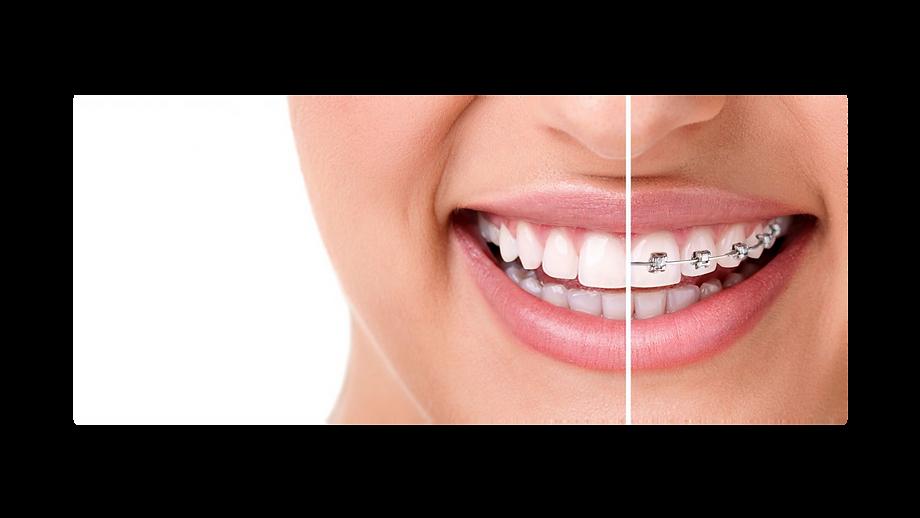 aparelho-ortodontico-sorrisos-odontologi
