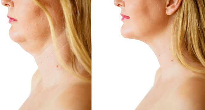 Woman before and after chin fat correcti