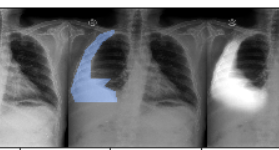 Automated Detection of Pleural Effusion from Chest X-Rays