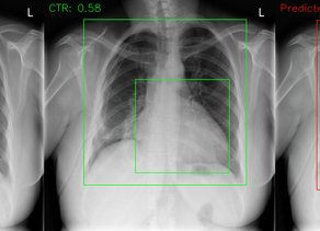 Diagnosing Cardiomegaly Using CTR Calculated from Chest X-Rays - A Machine Learning Approach