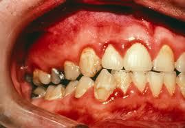 Es muy fácil padecer gingivitis, pero todavía más fácil es evitarla