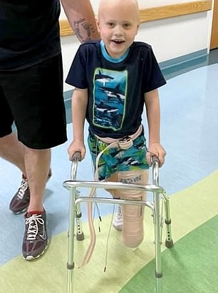 Surgery gives young amputee an opportunity to wear prostheses