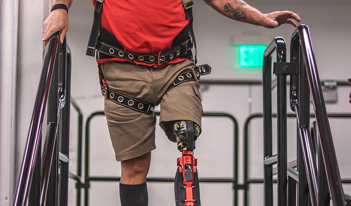 Retired Truck Driver Can Walk On Two Legs Again Thanks To Terminator-Like Bionic Leg