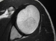 Osteonecrosi asettica.