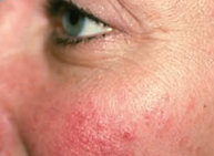 Woman's cheek with redness