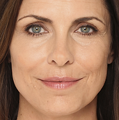 A middle-aged woman's face with noticeable wrinkles around her eyes and mouth