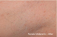 Female underarm without hair
