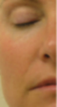 Close-up of one half of a woman's noticeably less red face