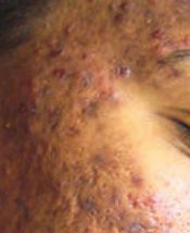 Side of face with extensive acne and scarring