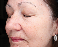 Close view of older woman's face with wrinkles and sun spots