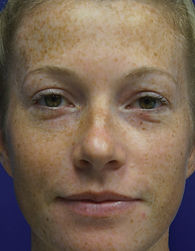 A young woman's face is largely covered in freckles