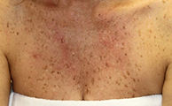 A woman's decollate covered in brown spots