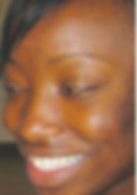 A young black woman's skin with dark spots and damage