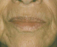 61-year-old woman's mouth and chin lined with wrinkles