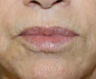 71-year-old woman's mouth and chin with noticeably smoother skin