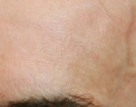 Close-up of skin above a 67-year-old man's eyebrow with no wrinkles and even skin tone