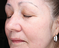 Close view of older woman's face with smaller wrinkles and fewer sun spots
