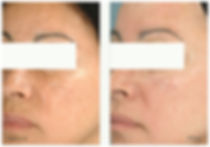 Before and after image of a middle-aged woman's face with brown spots and then without