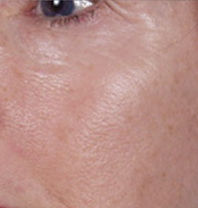 Close-up of a woman's cheek with subtle lines under the eye