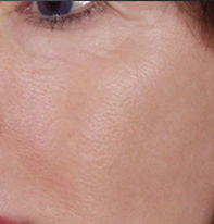 Close-up of a woman's cheek with smooth skin under the eye