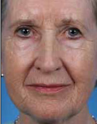 Elderly woman's face with extensive deep wrinkles