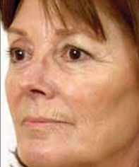 Older woman's face with significant wrinkles around eyes and mouth