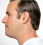 Middle-aged man photographed from the side with a double chin