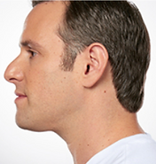 Middle-aged man photographed from the side with a noticeably leaner chin