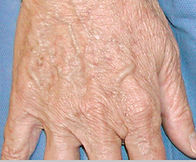 Elderly woman's hand without sun spots