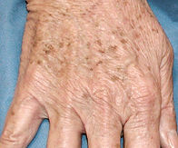 Elderly woman's hand speckled with brown sun spots