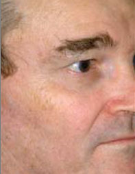 Side of older man's face with a smooth and even complexion