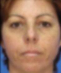 Middle-aged woman's sundamaged face