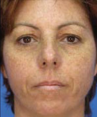Middle-aged woman's sundamaged face