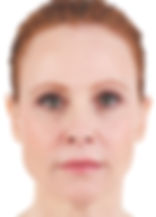 Red-haired woman with smooth skin around her lips and nose