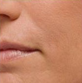 Close-up of smooth skin around a woman's mouth