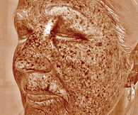Scan showing the underlying spots on an older woman's sundamaged face