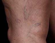 Upper thigh with unsightly veins