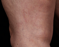 Upper thigh with veins minimally visible