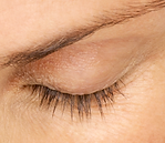 Close-up of a woman's eye with sparse lashes
